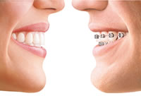 Comparison between Invisalign and normal Brackets